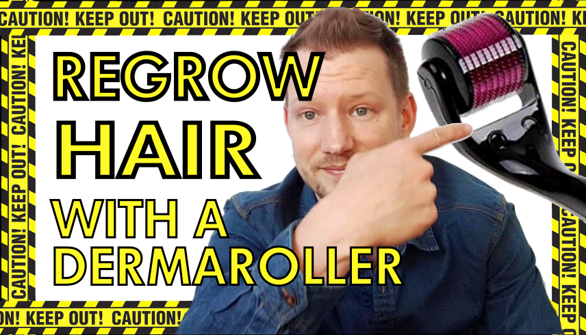 regrow hair with a dermaroller