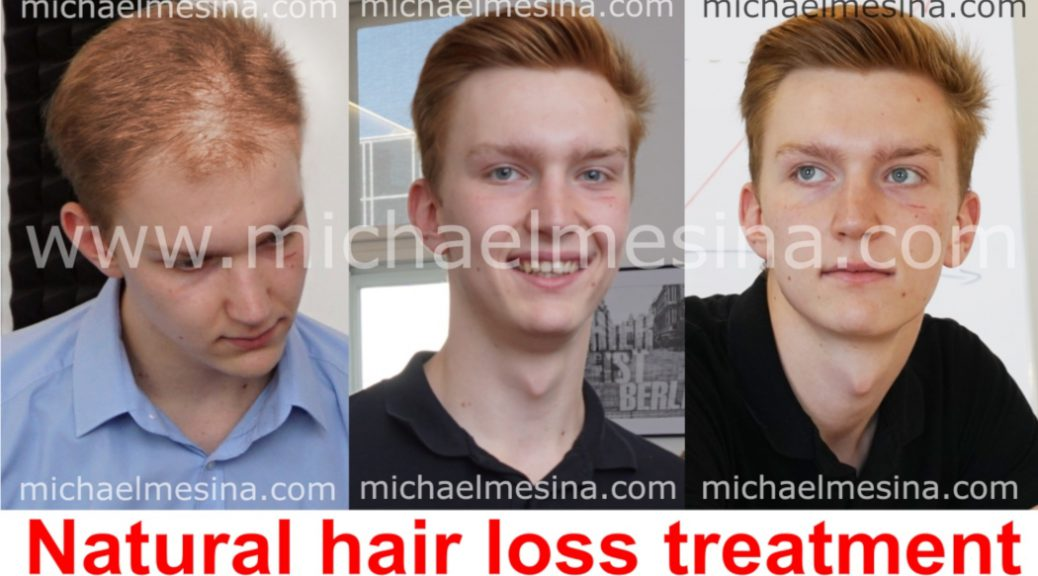 Natural Hair Loss Treatment Before After Natural Hair Loss Treatment