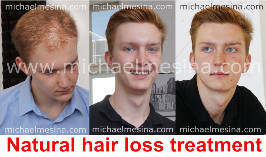 natural hair loss treatment before after